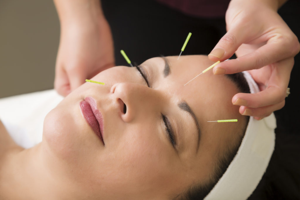 acupuncture to relieve